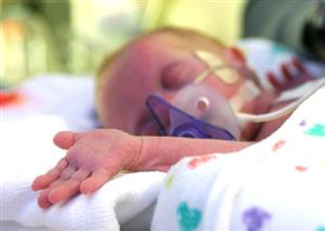 The art of enrolling preterm babies in clinical trials